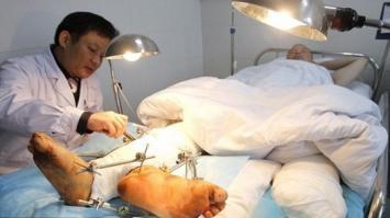 Cirujanos le dan dos pies derechos a un hombre para mantener viva la extremidad amputada