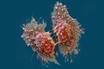 Por qué hay más casos de cáncer que años atrás
