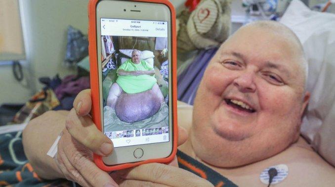 Le extirpan un tumor de 58 kilos originado por un pelo encarnado