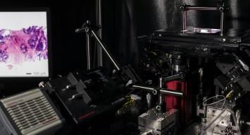 Microscopio es capaz de detectar tumores durante operaciones